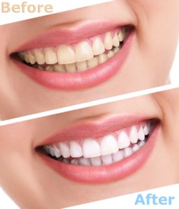 Cosmetic dentist before and after teeth whitening.
